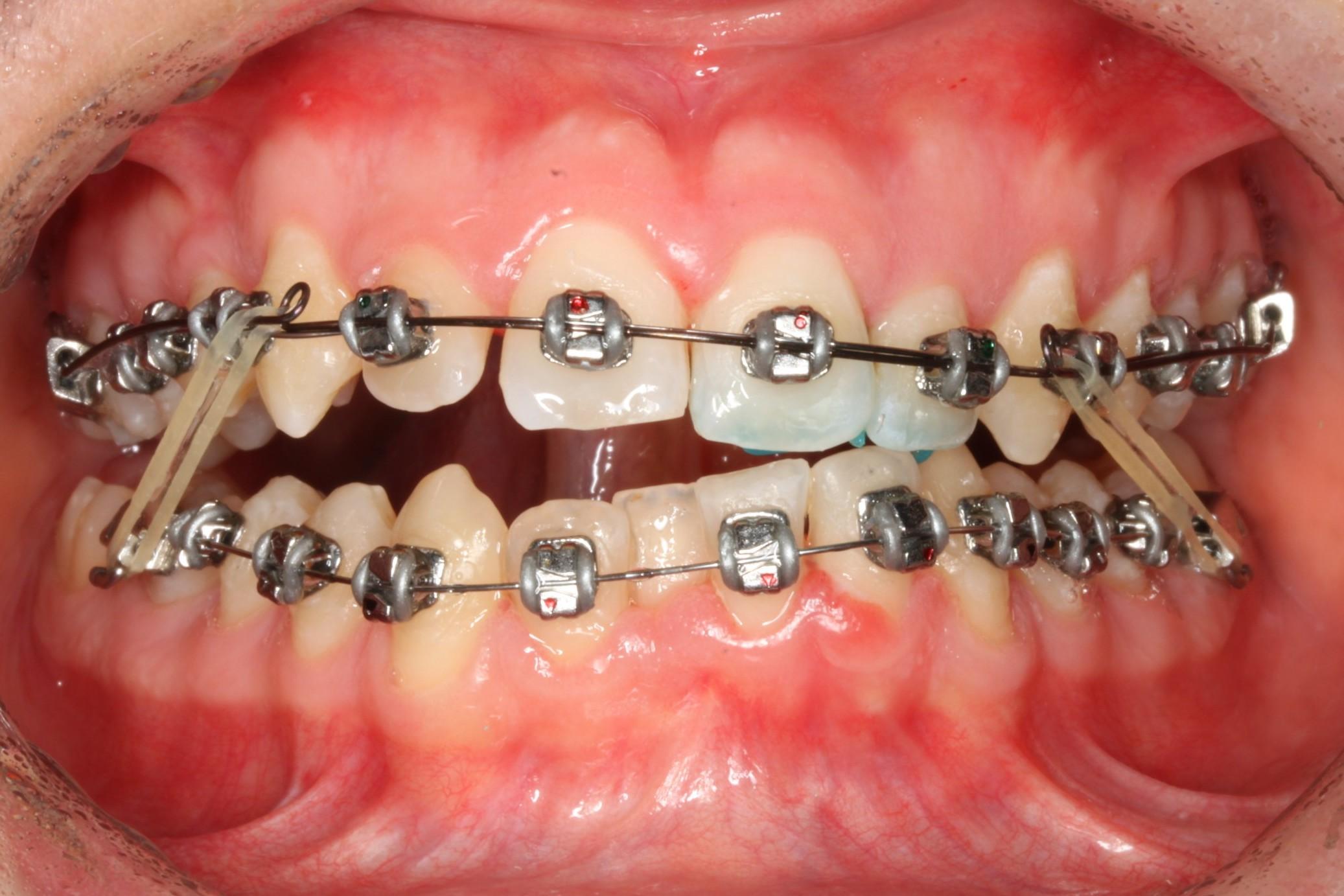 La dentista vacca - 2 10