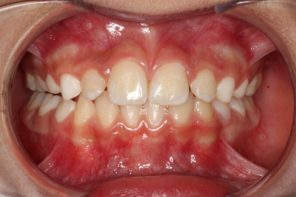 La dentista vacca - 2 3
