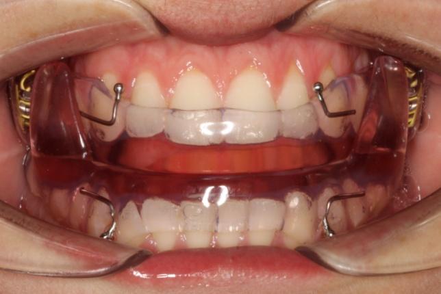 trattamento apparecchi dentali
