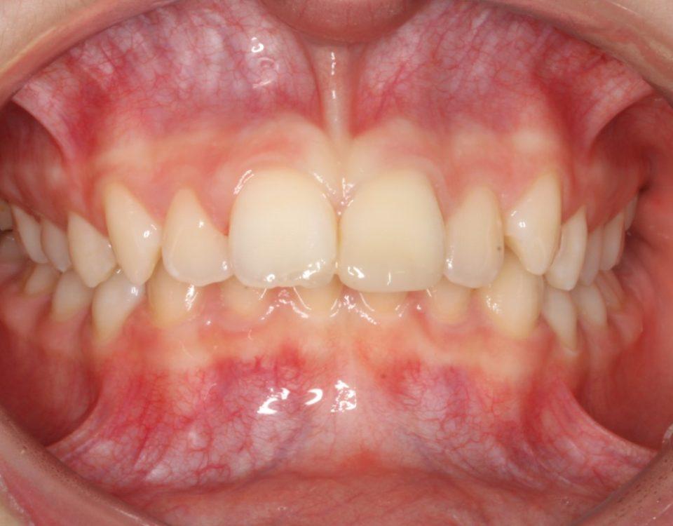 Dentista a Cagliari e Iglesias: ortodonzia e altre specialità, scopri la SORRISI & SOGNI EXPERIENCE